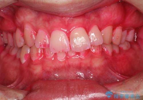 定期的なメンテナンスで歯磨きチェックの治療中