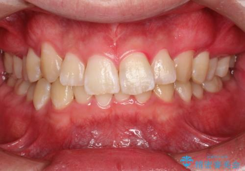 定期的なメンテナンスで歯磨きチェックの治療後