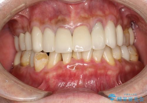 PMTCで歯石やステインOFFの治療前