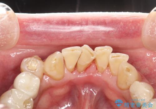 PMTCで歯石やステインOFFの治療後
