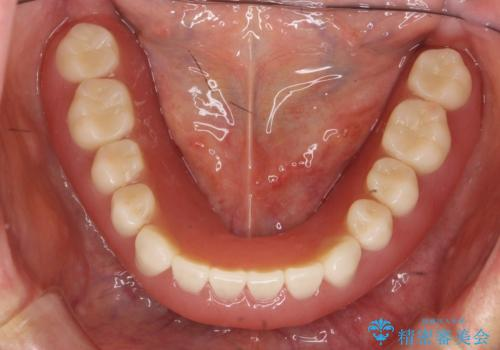 インプラントオーバーデンチャー 咬合平面の改善の治療後