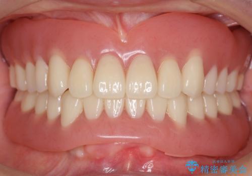 インプラントオーバーデンチャー 咬合平面の改善の症例 治療後