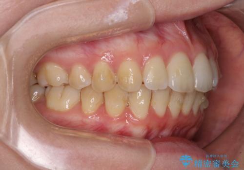 前歯のデコボコを解消 インビザラインによる矯正治療の治療中
