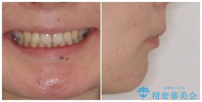 閉じにくい口元 前歯を引っ込める抜歯矯正の治療後(顔貌)