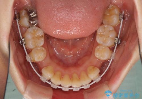 閉じにくい口元 前歯を引っ込める抜歯矯正の治療中