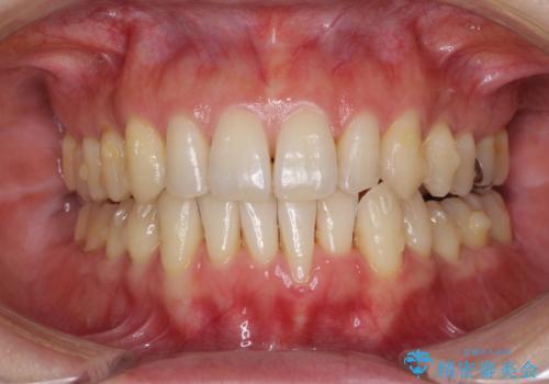 八重歯のインビザライン矯正治療の治療中