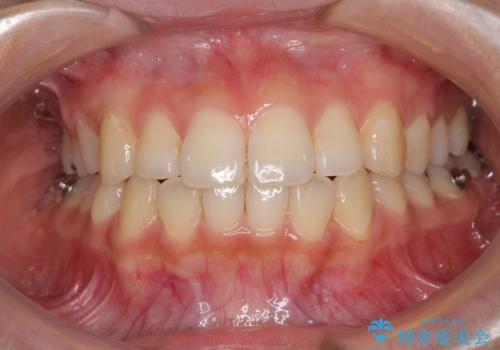 前歯の突出感とデコボコ インビザラインで改善の治療中