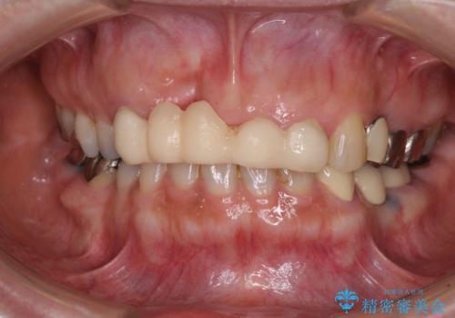 汚い仮歯で困っている 前歯のオールセラミックブリッジの治療前
