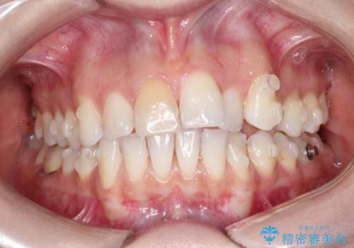 インビザラインによる非抜歯での八重歯の矯正 の治療中