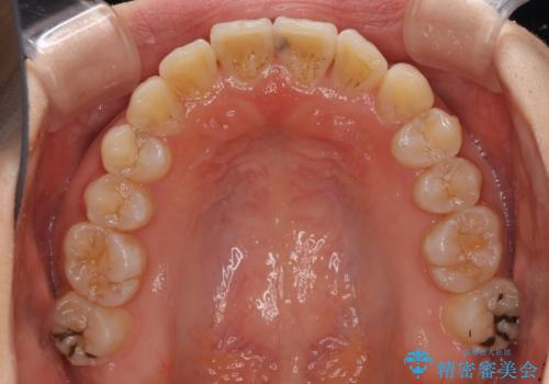 気になる前歯のデコボコ インビザラインによる矯正治療の治療中