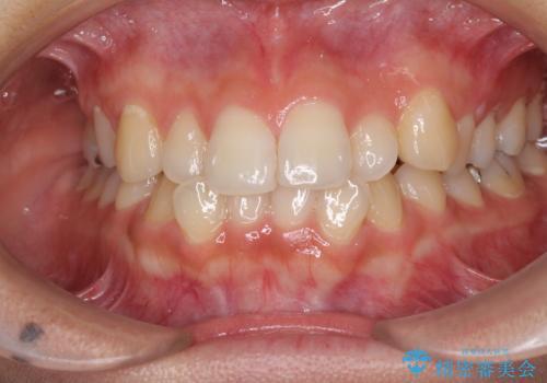前歯の突出感とデコボコ インビザラインで改善の症例 治療前