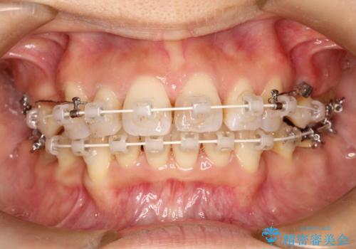 ワイヤーによる抜歯矯正でガタガタと深いかみ合わせの改善の治療中