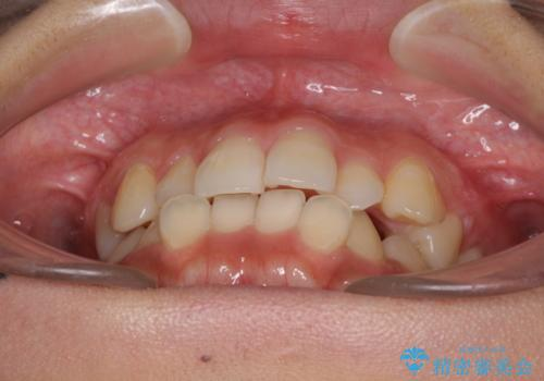 前歯の突出感とデコボコ インビザラインで改善の治療前