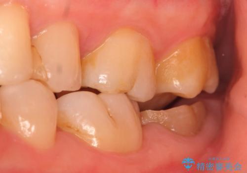 歯冠延長術 他院にてクラウンが入れられないと言われた歯の治療の治療前