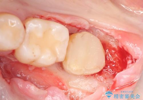 歯冠延長術 他院にてクラウンが入れられないと言われた歯の治療の治療中