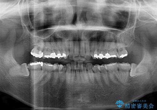 閉じにくい口元 前歯を引っ込める抜歯矯正の治療前