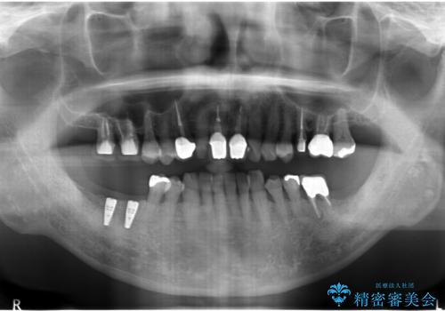 奥歯が割れてしまった インプラントでかめるように 全体的な治療もの治療中