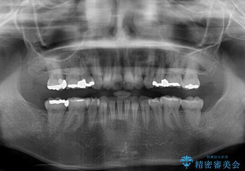 閉じにくい口元 前歯を引っ込める抜歯矯正の治療後