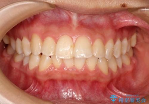 【非抜歯矯正】できる限り前歯を引っ込めたいの症例 治療前