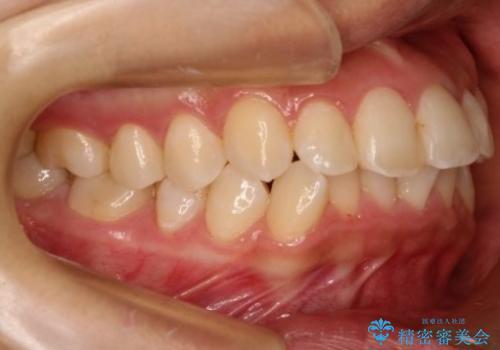 【非抜歯矯正】できる限り前歯を引っ込めたいの治療前