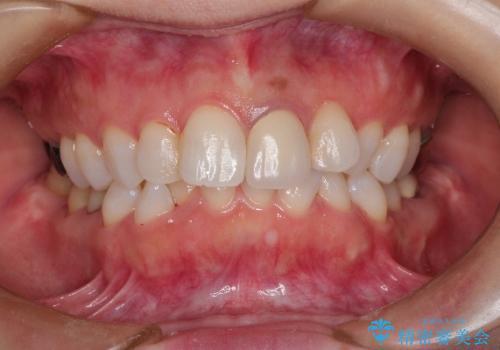 インビザラインによる非抜歯矯正 ガタガタな歯並びを整った歯並びへの症例 治療前