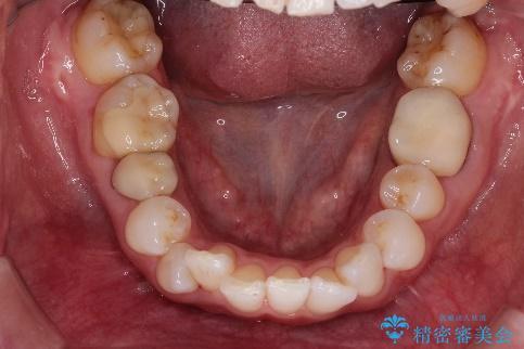 インビザラインによる非抜歯矯正 ガタガタな歯並びを整った歯並びへの治療前