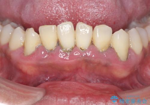 [ 非外科・歯石除去 ]  歯周初期治療による歯肉状態の改善の治療前