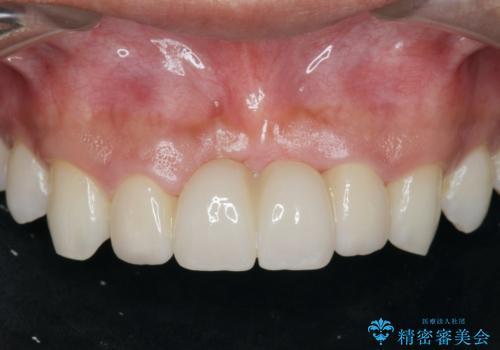 [前歯の歯根吸収] 前歯審美セラミックブリッジの製作の治療後