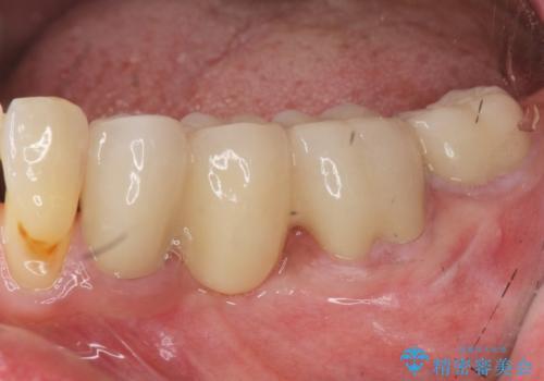 [セラミック治療]  金属色の目立つ口腔内を改善したいの治療後