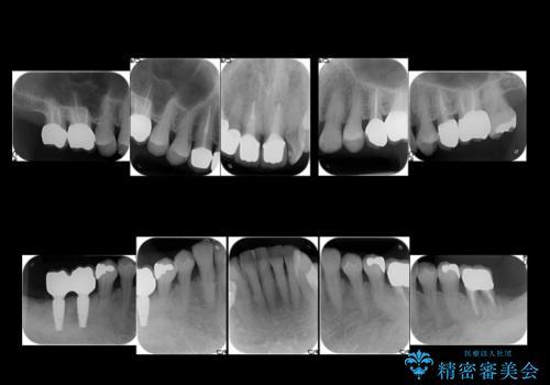 奥歯が割れてしまった インプラントでかめるように 全体的な治療もの治療後