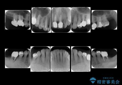 奥歯が割れてしまった インプラントでかめるように 全体的な治療もの治療前