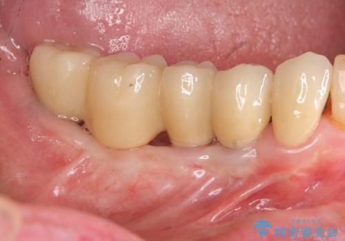 奥歯のインプラント治療の症例 治療後
