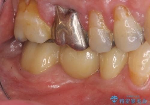 歯の破折 フルジルコニアブリッジ補綴の治療後