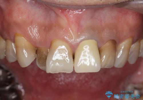 [前歯 セラミック治療]  すぐに前歯が取れる きちんと治療して欲しいの治療前
