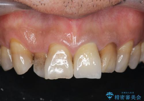[前歯 セラミック治療]  すぐに前歯が取れる きちんと治療して欲しいの症例 治療後