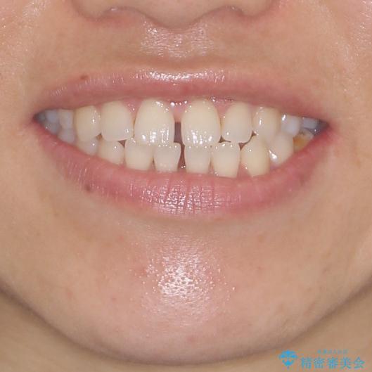 隙間の空いた前歯を治したい インビザライン矯正治療の治療前(顔貌)