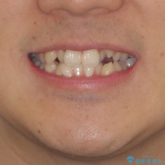 八重歯を治したい 目立たないワイヤー装置での抜歯矯正の治療前(顔貌)