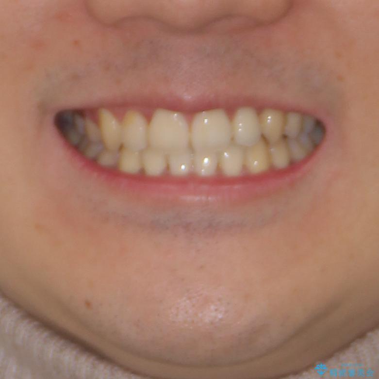 八重歯を治したい 目立たないワイヤー装置での抜歯矯正の治療後(顔貌)
