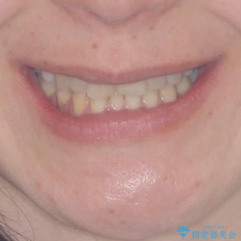 矯正の後戻りの改善と銀歯をセラミックにの治療前(顔貌)