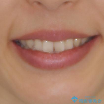 隙間だらけの歯列をきれいに インビザライン矯正とセラミック補綴治療の治療前(顔貌)