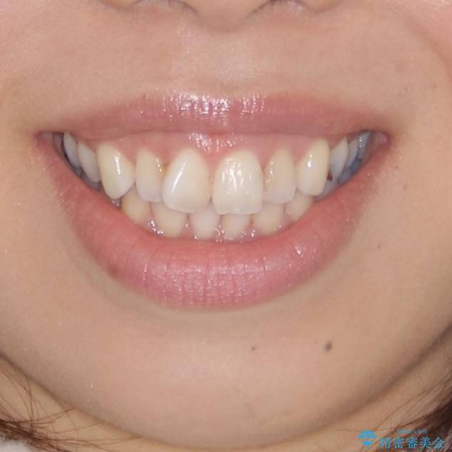 前歯の突出を軽減 インビザラインによる抜歯矯正の治療前(顔貌)