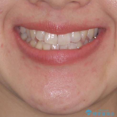前歯のデコボコ インビザラインによる矯正治療の治療前(顔貌)
