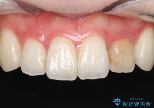 前歯の変色 オールセラミッククラウンの治療前