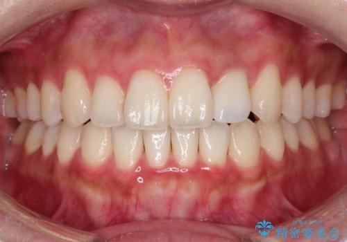 前歯の変色 オールセラミッククラウンの治療後