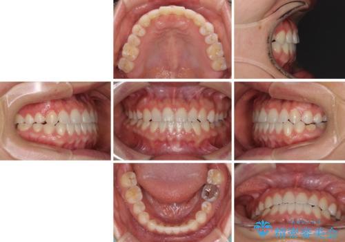隙間の空いた前歯を治したい インビザライン矯正治療の治療後