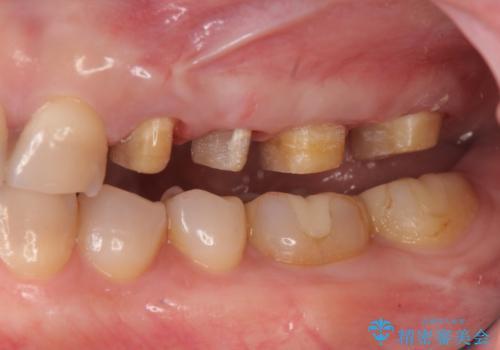 放置した虫歯 根管治療 フルジルコニアクラウンの治療中