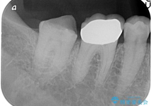 虫歯の治療 ゴールドクラウンの治療前