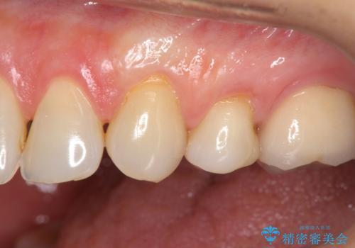 歯磨きすると歯がしみる 結合組織移植による根面被覆の治療後