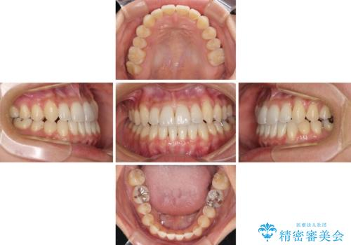 前歯のデコボコ インビザラインによる矯正治療の治療中