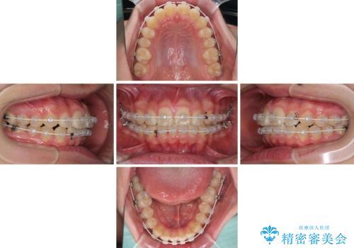 前歯のデコボコを短期間で治療 目立たないワイヤー矯正の治療中